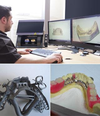 Laboratoire Gagnaire - prothésiste dentaire - stellite