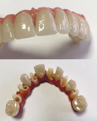 Laboratoire Gagnaire - implants