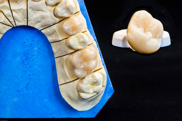 Laboratoire Gaganaire : prothèse dentaire fixe claassique